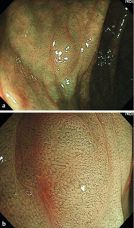 Flat-type lesion (0 – IIa), 5 mm in size. A flat, light brown lesion, which was classified as NICE 2 (narrow-band imaging international colorectal endoscopic [classification]) with low confidence prediction by NBI-NME (narrow-band imaging with non-magnifying endoscopy) (a) and subsequently as NICE 2 with high confidence prediction by NBI-ME (narrow-band imaging with magnifying endoscopy) (b). High magnifying endoscopy revealed the vascular pattern clearly. Histology revealed a tubular adenoma with low grade dysplasia.