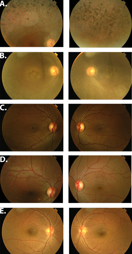 Fundus photographs of family PKRP133. A: OD and OS of individual 21. B: OD and OS of individual 30. C: OD and OS; individual 33 (examined at the age of 22 years). D: OD and OS of individual 33 (examined at the age of 24 years). E: OD and OS of individual 41. Fundus photographs of the affected individuals show attenuated arteries, bone spicule-like pigmentation, and slightly tilted waxy optic discs. OD=oculus dexter (right eye); OS=oculus sinister (left eye).