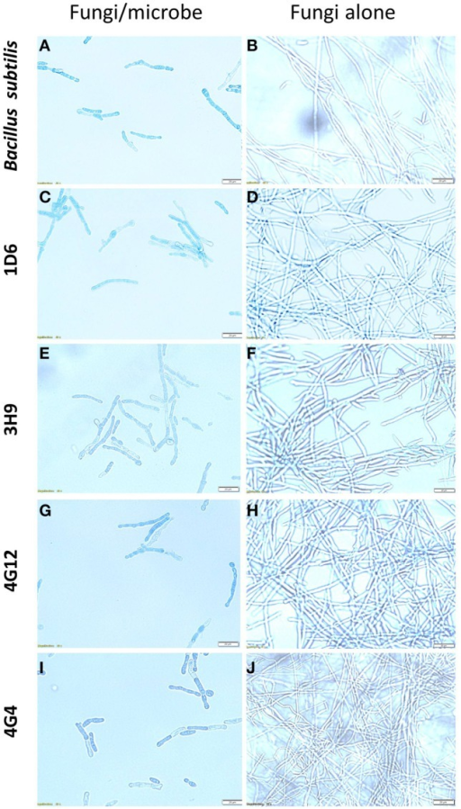 The effects of the candidate endophytes on F. graminearum in vitro using the vitality stain, Evans blue. Shown are representative microscope slide pictures (n = 3) of the interactions of F. graminearum with: (A) the commercial biological control agent, Bacillus subtilis (100 mg/10 ml) compared to (B) the buffer control; (C) Strain 1D6 compared to (D) the buffer control; (E) strain 3H9 compared to (F) the buffer control; (G) Strain 4G12 compared to (H) the buffer control; (I) Strain 4G4 compared to (J) the buffer control.