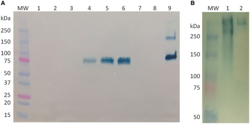 Western blot analysis of butyrylcholinesterase (BChE) produced in rice cell culture. (A) Western blot under reducing conditions of cell-associated samples from before and after medium exchanges. Each lane contains 20 muL of crude cell extract. Lane MW: molecular weight ladder; lane 1, day 16, immediately before start of Expression phase 1; lane 2, day 16, immediately after start of Expression Phase 1; lane 3, day 18; lane 4, day 20; lane 5, day 21, immediately before start of Growth phase 2; lane 6, day 21, immediately after start of Growth phase 2; lane 7, day 23; lane 8, day 25; lane 9, control, 900 ng purified equine BChE. (B) Western blot under native conditions of BChE. Lane MW: molecular weight ladder; lane 1: 52 U (~200 ng) active BChE from an intracellular sample from day 3 of Expression phase 1; lane 2: control, 200 ng purified equine BChE.