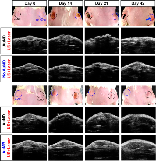Enhanced therapeutic efficiency in tumors with AuNDs-assisted PPTT.Ultrasound B-mode imaging at the indicated treatment days shows that when tumors exposed to laser radiation and ultrasound simultaneously, the enhanced PPTT efficiency was observed in tumors loaded with AuNDs in compare to tumors loaded with AuMBs or without contrast agent loading.