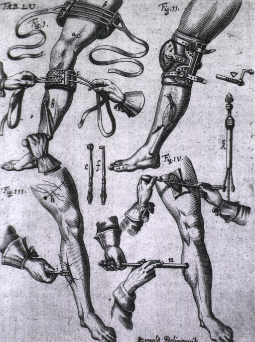<p>Four vignettes demonstrating treatment for knee, bone and vein problems.</p>