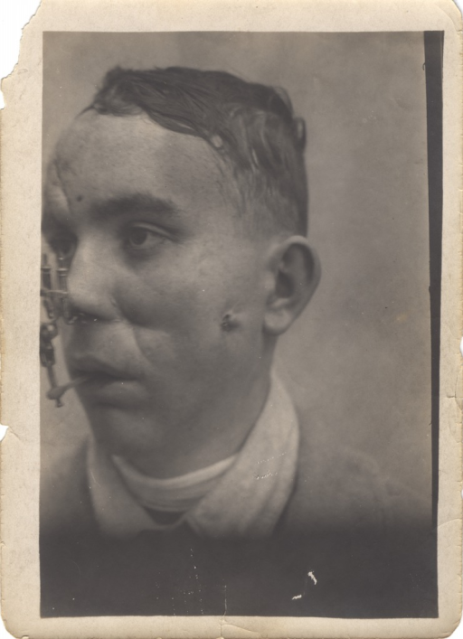 <p>Black and white photograph of injured soldier with facial and head wounds. Patient's mouth is partly open and there is a mechanism connecting his nose and mouth. There is a bullet wound in the patient's left cheek.</p>