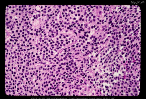 Central neurocytoma