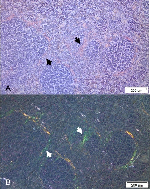 Spleen amyloid deposits stained with Congo red.(A) The amyloid appears pink and is localized to the perifollicular zone. (B) The identical area exhibits green birefringence in polarized light. Amyloid is indicated by arrows.