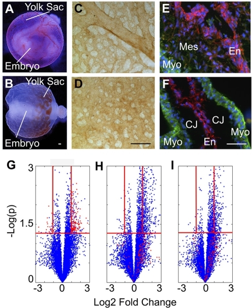 Experimental Model: Applying Proteomic Profiling to a Hyperglycemia Induced Model of Cardiovascular Defects.Embryos cultured ex vivo exhibit normal organogenesis and vascular development (A, normal embryo inside a functional yolk sac containing circulating red blood cells). Embryos treated with 20 mM D-glucose display malformation of the embryo and vasculature (B, abnormal embryo and pooling of blood at one pole). PECAM staining of control yolk sacs reveals a mature, remodeled vasculature (C) while hyperglycemic yolk sacs appear immature and mal-developed (D). Normally by E9.5, EMT has begun within the cardiac endocardial cushions (E). Treatment with hyperglycemia results in an acellular endocardial cushion (F). E–F: α-Smooth muscle cell actin (green) labeling of the myocardium (Myo) and mesenchymal cells (Mes); PECAM (red) staining of the endocardium (En); CJ (Cardiac Jelly). Volcano plots (G–I)) depicting each peptide peak detected by LC-MS as a blue dot and plotting the log2 ratio (of treatment to control) against −log10 p value (G, HG vs Control; H, HG+rVEGF vs Control; I, HG+ nitric oxide donor vs Control). The red dots represent the 143 peptide peaks that were dysregulated by hyperglycemia but returned to control levels by both rVEGF (H) and nitric oxide donor (I). The red horizontal lines are drawn at p = 0.05 and the red vertical lines are drawn at log2 ratio = 1 and −1. Scale bars = 100 µm. (A–B is reprinted from Am J Pathol 2001, 158:1199-206 with permission from the American Society for Investigative Pathology.)
