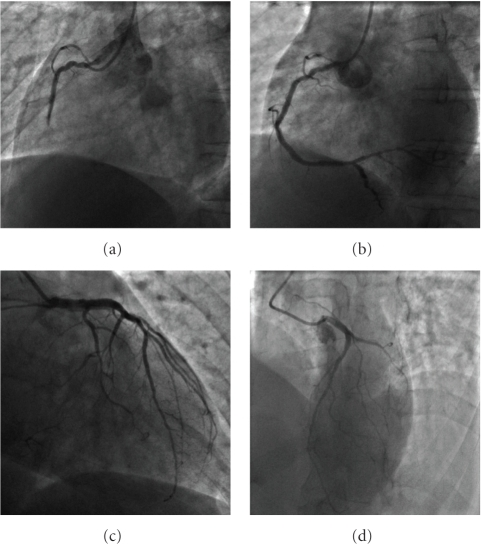Initially, the coronary angiography showed an acute thrombotic occlusion on the second segment of the right coronary artery (Panel (a)). The patient underwent angioplasty and stenting with a final good result (Panel (b)). Coronary angiography revealed a severe stenosis on a minor circumflex coronary artery (Panel (c)). There were many diffuse lesions on the left anterior descending coronary artery and his branches without significant stenosis (Panel (d)).