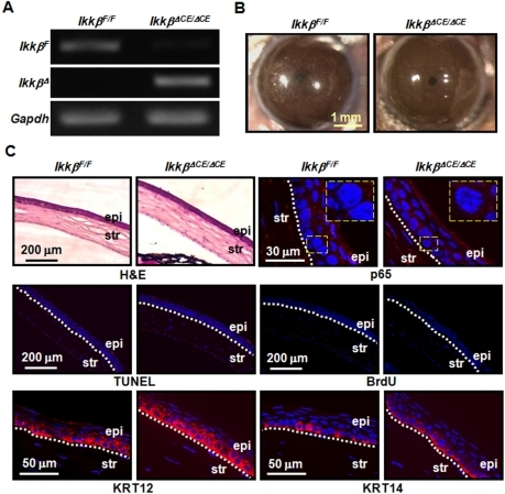 IKKβ is dispensable for the maintenance of mouse corneal epithelium.The adult double (IkkβF/F) and triple (IkkβΔCE/ΔCE) transgenic mice were fed with Dox-chow for 30 days. (A) Genomic DNA was isolated from the corneal epithelial cells and subjected to PCR genotyping using primers specific for the IkkβΔ (deleted allele), IkkβF (floxed allele) and Gapdh. The triple transgenic mice lost IkkβF and acquired IkkβΔ alleles. (B) The eyes were photographed and (C) their tissue sections were subjected to histological analyses by H&E staining and molecular characterization by immunostaining (red) and nuclei were identified by DAPI staining (blue). The TUNEL assay was used to detect apoptosis, BrdU incorporation was used for proliferation, and the expression of KRT12 and KRT14 was used to evaluate corneal (KRT12) and basal (KRT14) epithelial differentiation. The activation of the IKK pathway was evaluated by p65 nuclear translocation and pictures were taken at low and high (rectangle inserts) magnifications. The boundaries of corneal epithelium (epi) and stroma (str) were marked with dotted lines. The picture represents at least 3 slides of each mouse and 2 mice of each genotype used for the studies.