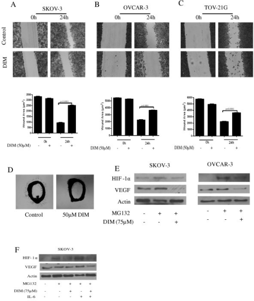 Diindolylmethane (DIM) blocks cell migration and neovascularization by inhibiting hypoxia-inducible factor 1α (HIF-1α) and vascular epithelial growth factor (VEGF). (A) SKOV-3, (B) OVCAR-3 or (C) TOV21G cells were plated, scratched with a pipette tip and incubated in the absence or presence of 50 μM DIM. Photographs were taken at 0 h and 24 h using an inverted microscope. The wound area in DIM treated and control cells were quantified by ImageJ software. Results are presented as means ± SD of triplicates. (D) DIM inhibits interleukin (IL)-6-induced vessel sprouting ex vivo. Representative photographs are presented. (E) Effect of DIM on proangiogenic proteins was analyzed by western blotting. SKOV-3 or OVCAR-3 cells were treated with 10 μM MG132 for 1 h and then exposed to 75 μM DIM for 6 h. (F) Cells were treated as above and then treated with IL-6 for 15 minutes. Representative blots of HIF-1α and VEGF are shown. Blots were further stripped and probed with actin. Experiments were performed independently three times. The Student's t test was used for statistical analysis to compare control and DIM treatment.
