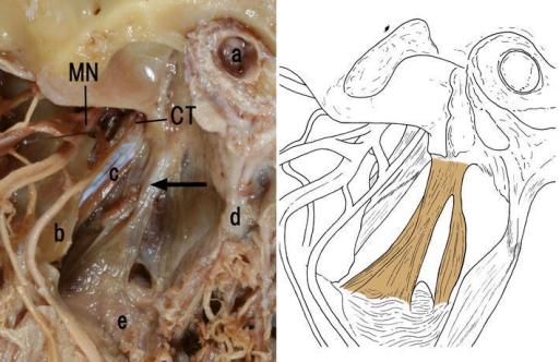 lateral pterygoid cadaver - photo #19