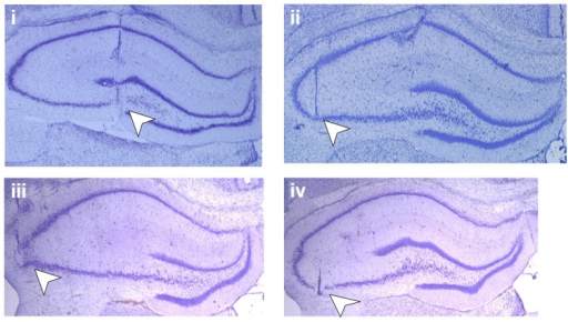 Position of the electrodes. Photomicrographs of Nissl-stained hippocampal slices show placement of electrodes (white arrowheads) in mf-CA3 and AC–CA3 preparations: (i) shows the position of the stimulation electrode in the mossy fiber pathway and (ii) the position of the recording electrode in area CA3 stratum lucidum, whereas picture (iii) shows the stimulating electrode in the associational-commissural pathway and (iv) the recording electrode in area CA3 stratum radiatum.