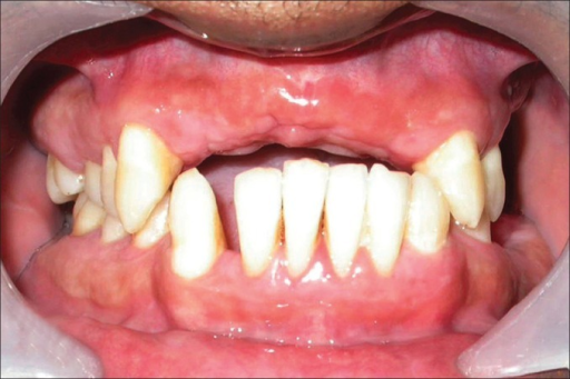 No evidence of recurrence of gingival enlargement at 1 year postoperative presentation