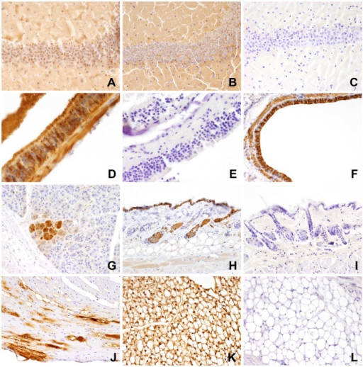 Immunohistochemical staining patterns of different organs with the polyclonal anti-P antibody and the monoclonal antibody Bo18.A. Diffuse immunostaining in the area of the dentate gyrus, brain, anti-P antibody; shrew CL72; B. Diffuse immunostaining in the area of the dentate gyrus, brain, Bo18 Ab; Note slightly different immunostaining with presence of nuclear signals with anti-P antibody and absence of nuclear signals with Bo18 Ab. C. Absence of immunostaining in the dentate gyrus of a BDV-negative shrew; brain, CL61; D. Abundant immunostaining of olfactory epithelium with presence of strongly stained intranuclear bodies, anti-P antibody, shrew CL73; E. Lack of immunostaining in the olfactory epithelium of a BDV-negative animal, anti-P antibody, shrew CL61; F. Immunostaining of entire bronchial epithelium and underlying smooth muscle layer, lung, anti-P antibody, shrew CL62; G. Immunostaining of a group of glandular epithelial cells, salivary gland, anti-P antibody, shrew CL62; H. Immunostaining of keratinocytes and epithelia of hair follicles, skin; shrew CL62; I. Complete absence of immunostaining in the skin of a BDV-negative animal; anti-P antibody, shrew CL61; J. Immunostaining of myocardial cells; heart; Bo18 Ab; shrew CL76; K. Abundant immunostaining of adipocytes in abdominal fat tissue; anti-P antibody; shrew CL73; L. Complete absence of immunostaining in the fat tissue of a BDV-negative animal; anti-P antibody.