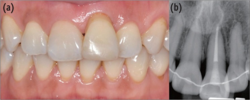 Eight weeks after trauma. (a) Intraoral photograph (labial view); (b) Periapical view.
