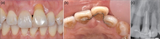 One year after trauma. (a) Intraoral photograph (labial view); (b) Intraoral photograph (palatal view); (c) Periapical view.