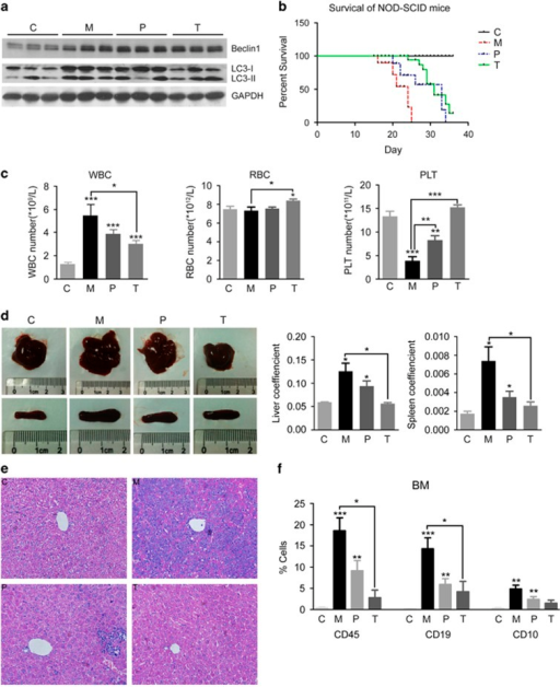 Activation of autophagy before or after transplantation of B cell leukemia cells prolonged the survival of xenograft mice. The mice were divided into four groups: control (C), preventive group (P, rapamycin administrated before human B-ALL cell transplantation), model group (M, no rapamycin administrated before or after the B-ALL cell transplantation) and treatment group (T, rapamycin administrated 1 week after B-ALL cell transplantation). The survival curve (b) showed that activation of autophagy by rapamycin in the preventive and treatment group prolonged 5–9 days of the survival time compared with model group (with 10 mice in each group). The autophagy level (a, Beclin1 and LC3 expression), peripheral blood cell counting (c), the size and coefficient of liver and spleen (d), the pathological section of liver (e), B-ALL immune typing of human CD45, CD19 and CD10 expression in mice (f) were showed. It indicated that rapamycin slowed down the malignant transformation of leukemia cells in NOD-SCID mice. ***P<0.001, **P<0.01, *P<0.05.