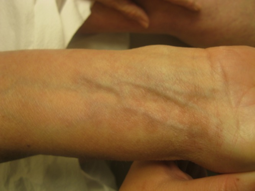 Right wrist with erythematous and brown indurated papules. (Copyright: ©2015 Rupley et al.)