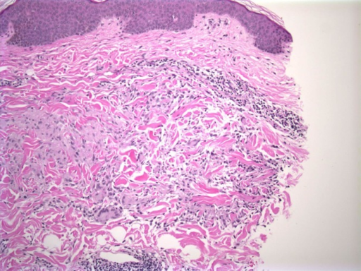 Individual collagen fibers are swollen and intensely eosinophilic. Histiocytic infiltrate around collagen fibers and a circumferential lymphocytic infiltrate are apparent (40×). (Copyright: ©2015 Rupley et al.)
