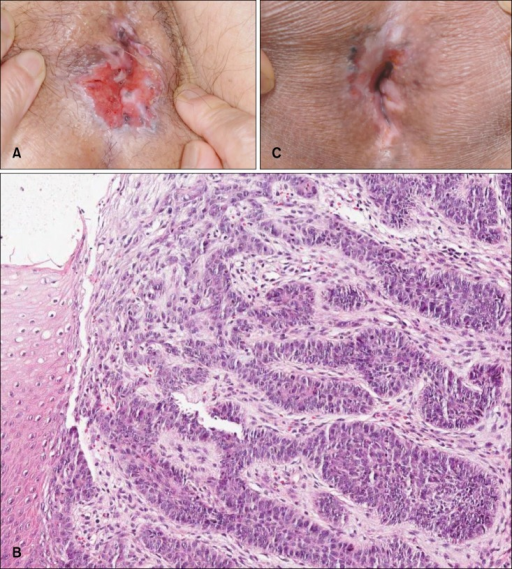 Initial clinical findings of basal cell carcinoma (BCC) in the perianal area. (A) Single, erythematous, asymptomatic ulcer with raised edge in the perianal area. (B) Histopathological findings. Nodular masses of basaloid cells extending into the dermis. The islands of tumor cells show a peripheral, palisading pattern and the nuclei, as a rule, have a rather uniform appearance (H&E, ×100). (C) After 17 fractions of radiotherapy over 6 weeks, the ulcerative lesion of perianal BCC shows considerable clinical improvement.