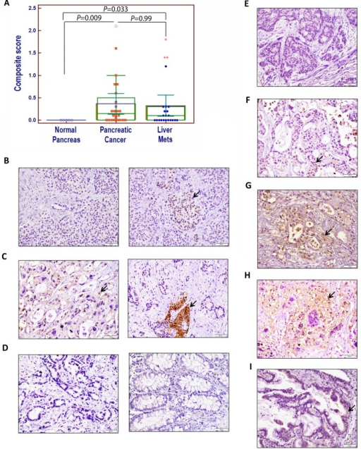 Immunohistochemical analysis of APLP2 protein expression in human pancreatic tissues, primary pancreatic cancer tissues, and patient-matched metastatic lesions in the liver and lung(A) A comparison of the composite scores for APLP2 protein expression in normal, malignant primary, and metastatic tissues from pancreatic cancer patients. Statistical analysis was done using Student's t test with the Bonferroni correction. The graphing software for the scatter plot automatically indicates out-of-range values with different symbols (open circle or asterisks). (B) The left panel presents normal pancreas with a small duct (negative for APLP2 expression), and the right panel shows normal pancreas with weak APLP2 positivity in neuroendocrine cells. (C) In the left panel, APLP2 positive expression is shown in pancreatic cancer tissue, with cytoplasmic staining in the cancer cells. The right panel shows pancreatic cancer that is APLP2 negative and islet of Langerhans that is positive (indicated by an arrow). (D) Data are displayed showing the absence of detectable APLP2 in a pancreatic cancer section (left panel) and in normal colon tissue (right panel). (E) APLP2 negative staining in a section of liver metastatic tissue is shown. (F) APLP2 weak staining in liver metastatic tissue is demonstrated. (G) APLP2 moderate staining in liver metastatic tissue is presented. (H) APLP2 intense staining in liver metastatic tissue is shown. (I) APLP2 positivity in lung metastatic tissue is displayed. The scale bar represents 50 μm. Selected areas of focal staining are indicated by the arrows.