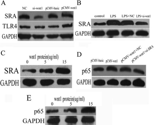 NF-kB was activated by wnt1 through increasing SRA expression. a SRA protein level was decreased in THP-1 cells transfected with wnt1 siRNA while ectopic expression of wnt1 increased it (p < 0.05), and TLR4 protein level was unchanged with either siRNA-wnt1 transfection or ectopic expression of wnt1. bwnt1 siRNA transfection decreased SRA expression induced by LPS (p < 0.05). c SRA protein level was increased following concentration gradient of human wnt1 recombination protein (p < 0.05). d p65 protein level was decreased in wnt1 overexpression-transfected THP-1 cells treated with SRA siRNA (p < 0.05). e p65 protein level was increased following concentration gradient of human wnt1 recombination protein (from 0 to 15 ug/ml) (p < 0.05). Results were normalized against levels of GAPDH protein.