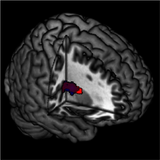 Interaction effect between neuroticism and the decision condition. Activation in the dorsal striatum correlated negatively with neuroticism for the contrast (decision unfair accepted > decision fair accepted) (red) and (decision unfair accepted > decision unfair rejected) (blue). The color purple indicates overlap between the two contrasts