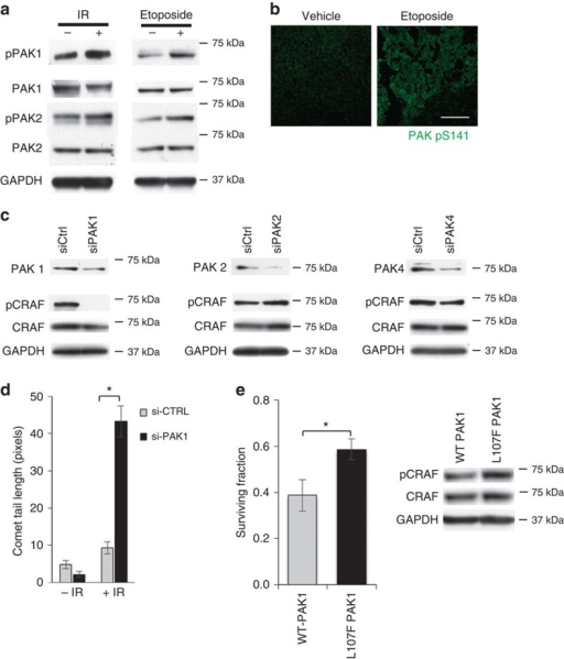 Stress-induced PAK1 triggers CRAF pS338 to prevent DNA damage.(a) HCT-116 cells treated with 6 Gy or 0.5 μM etoposide were lysed and analysed for total and phosphorylated PAK1/PAK2. Data are representative of three independent experiments. (b) HCT-116 xenograft tumours from mice exposed to Etoposide (5 mg kg−1) were harvested, immunostained and imaged by confocal microscopy to assess levels of PAK pS141 (green). Scale bar, 100 μm. Data shown are representative of n=4 mice per group, four fields per mouse, for two independent experiments. (c) Expression of PAK1, 2 and 4 were silenced using siRNA in HCT-116. PAK and CRAF pS338 levels were assessed by immunoblotting. Data shown are representative of two different siRNAs per target, for two independent experiments. (d) Expression of PAK1 was silenced using siRNA in HCT-116 cells and then cells were treated with 6 Gy. DNA damage was assessed using neutral comet assay. Mean comet tail length±s.e.m., *P<0.0001 from two-sided t-test comparing irradiated si-CTRL versus si-PAK1 with n=100+ cells per group. Data shown are representative of two different siRNAs per target, for two independent experiments. (e) HCT-116 cells were transfected with WT or active PAK1 (L107F) for 72 h and then irradiated. Cells were immunoblotted for pS338 CRAF and survival was measured by clonogenic assay. Mean surviving fraction±s.e.m., *P<0.05 from two-sided t-test comparing WT versus active PAK1 with n=6 wells per group.