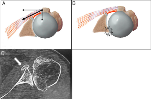Drawing of the left shoulder from axial slice, showing: (A) the muscle forces that act on the glenohumeral joint (arrows) and the anterior capsule (in red) and which lead (B) to subsequent subluxation. Axial slice from computed tomography (C) on the left shoulder, showing formation of osteophytes (arrow) and subsequent subluxation.