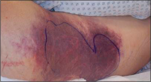 severe contusion and friction burn over the back of the open i