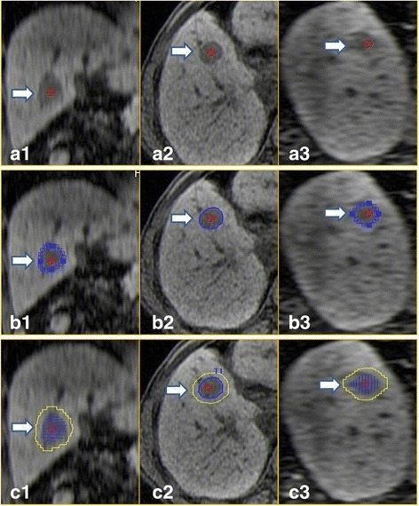 a1-a3 One delayed phase series of MR in DICOM format was transferred into the navigation system, and the navigation system automatically generated the three-dimensional data and showed the transverse, coronal and sagittal plane of the tumor. b1-b3 The index tumor is outlined in blue. c1-c3 The 5-mm AM is outlined in yellow