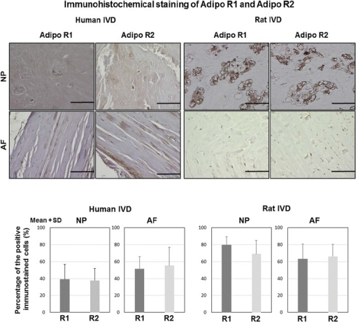 Immunohistochemical staining of AdipoR1 and AdipoR2 in human and rat IVDs. (Top) Photomicrographs demonstrating immunohistochemical localization of AdipoR1 and AdipoR2 in both NP and AF: bars = 100 μm. (Bottom) Percentage (%) of positive immunostained cells. Data were obtained from human IVD (N = 4) and rat IVD (N = 4), and expression is shown as mean + SD. R1 AdipoR1, R2 AdipoR2